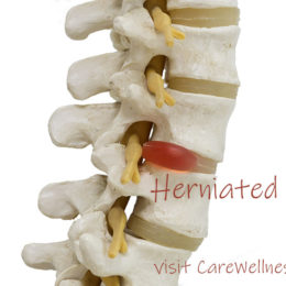So You've Been Diagnosed with Herniated Discs