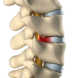 Example of Bulging Disc and its effective treatment (in this article) - Margate / Coconut Creek Florida