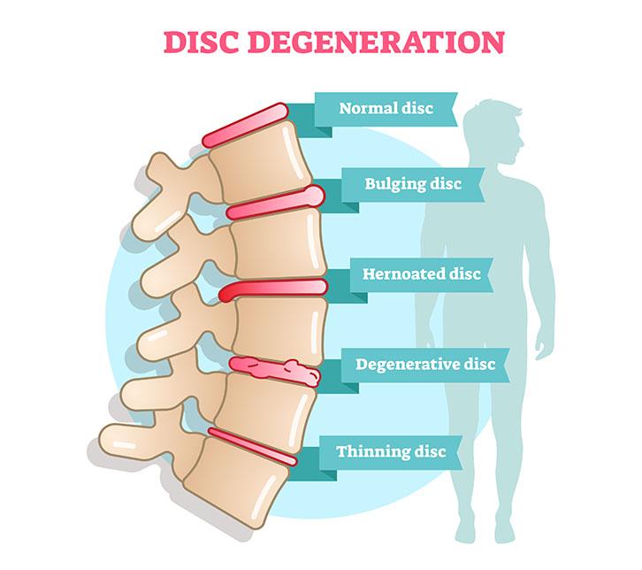 Example of Degenerative Disc Disease Example